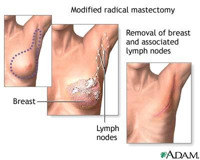 A mellrák kezelése