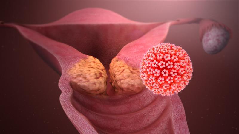 papilloma vírus tumor száj