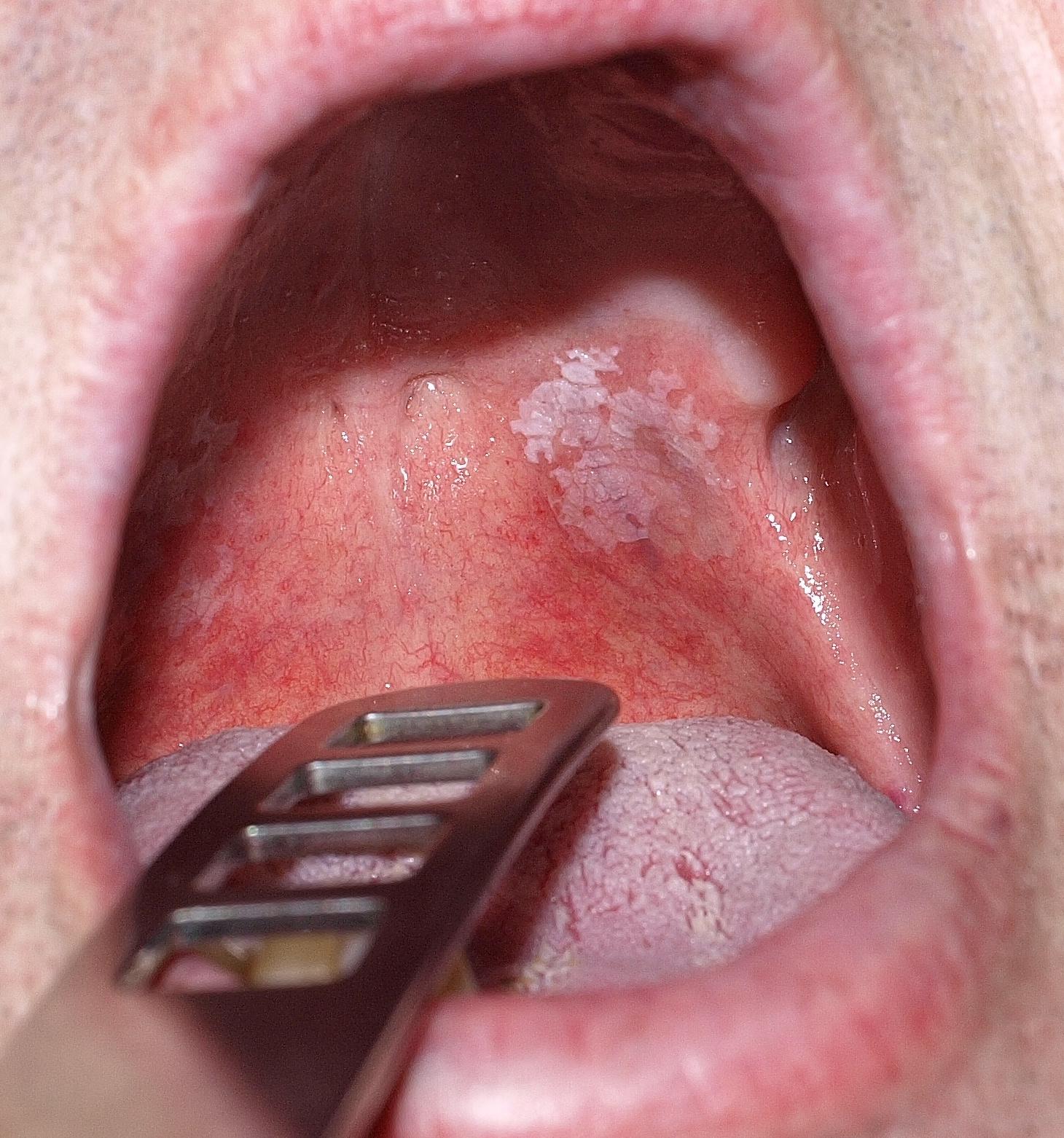 papilloma a nyelv hegyén, amikor eltávolítják)
