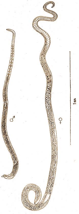 enterobius vermicularis nőstény és hím)