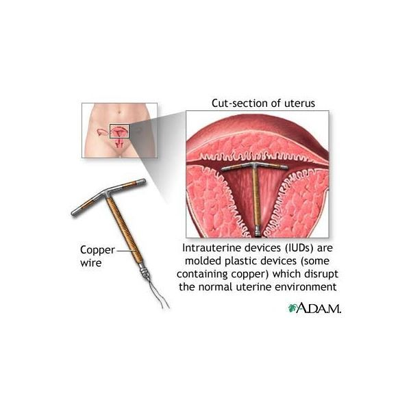 endometrium rák hiszteroszkópián