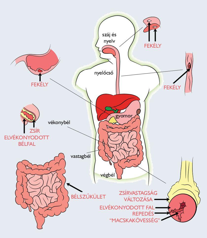 az emberi test parazita kezelése