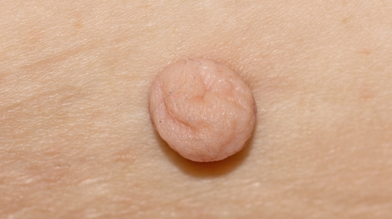 hpv impfung usa