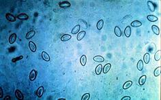 enterobiasis által pinworm