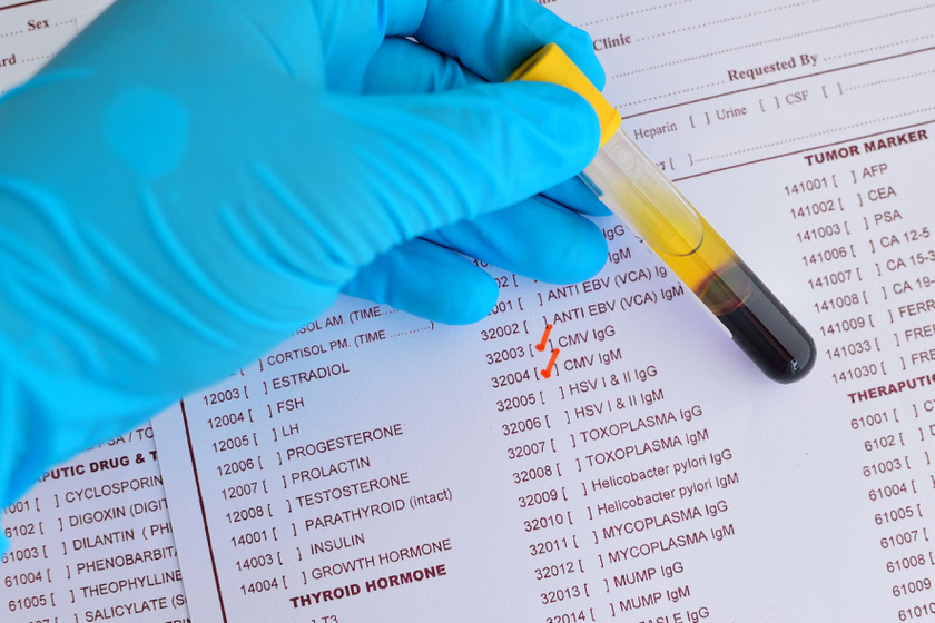 Istenhegyi Géndiagnosztikai Centrum