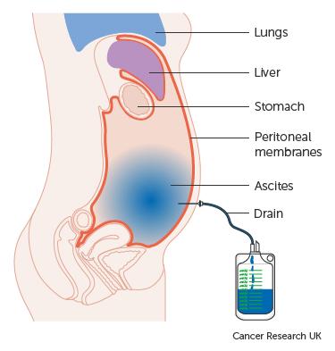 várható élettartam peritonealis rák)