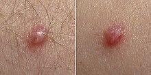 HPV - mi az és hogyan kezelhető a fertőzés - Allergia October