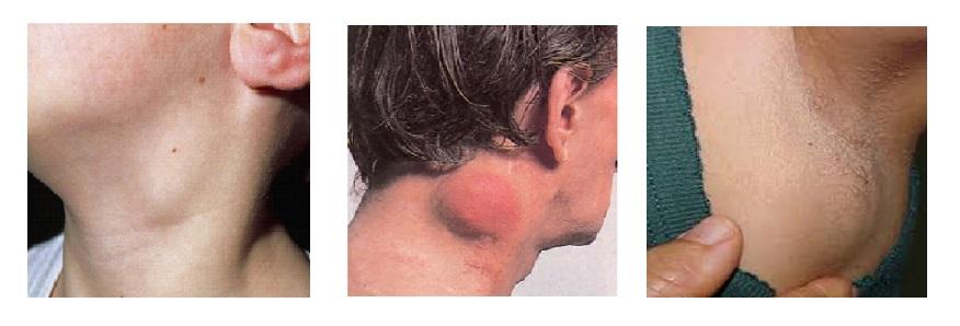 Limfóma tünetei és kezelése