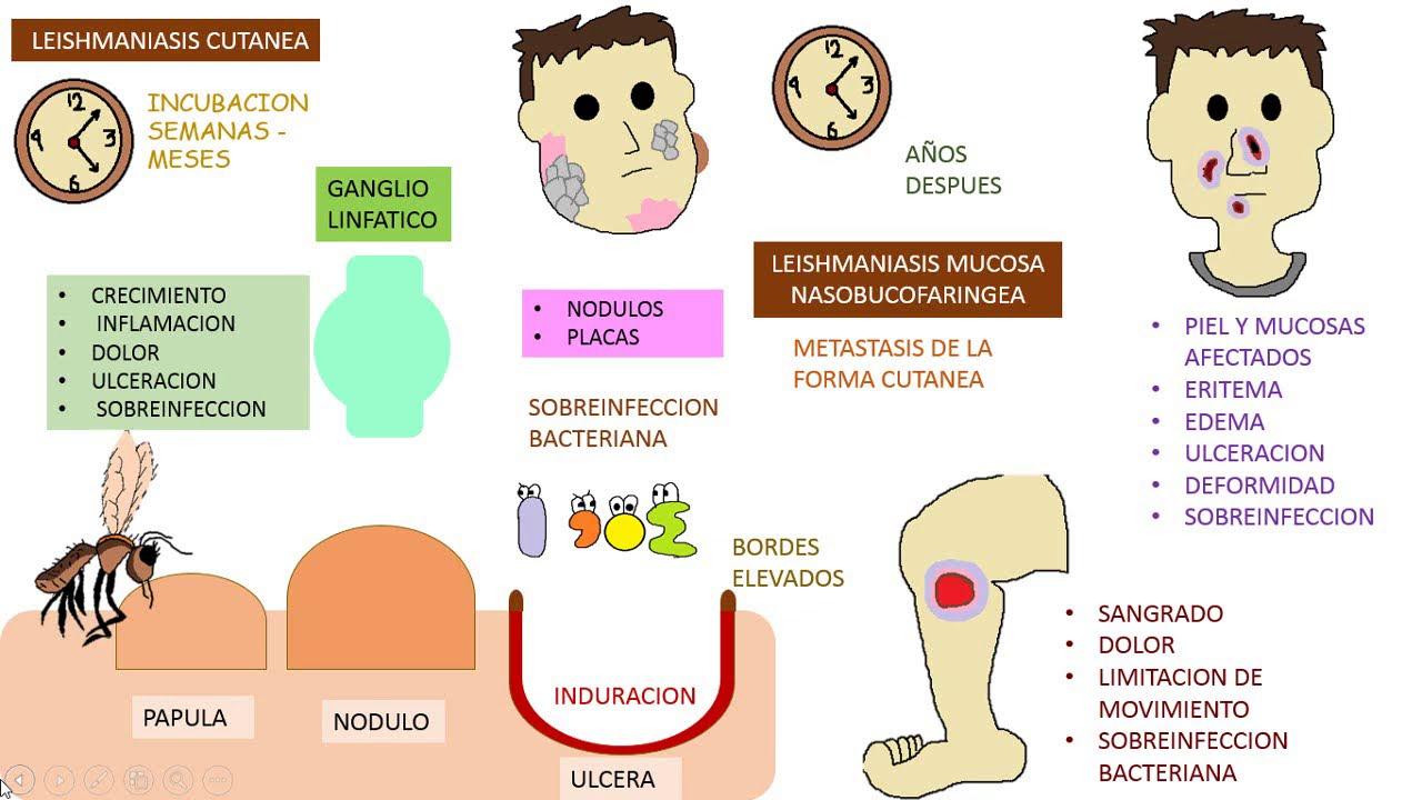 Idegentest eltávolítása a szemből | Med-Aesthetica