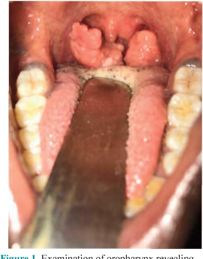 papilloma vírus tumor tünetei