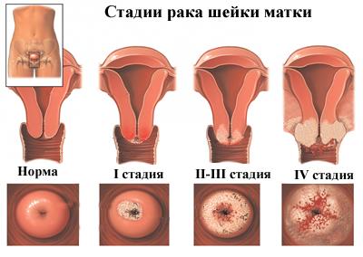 hpv genetikai rák