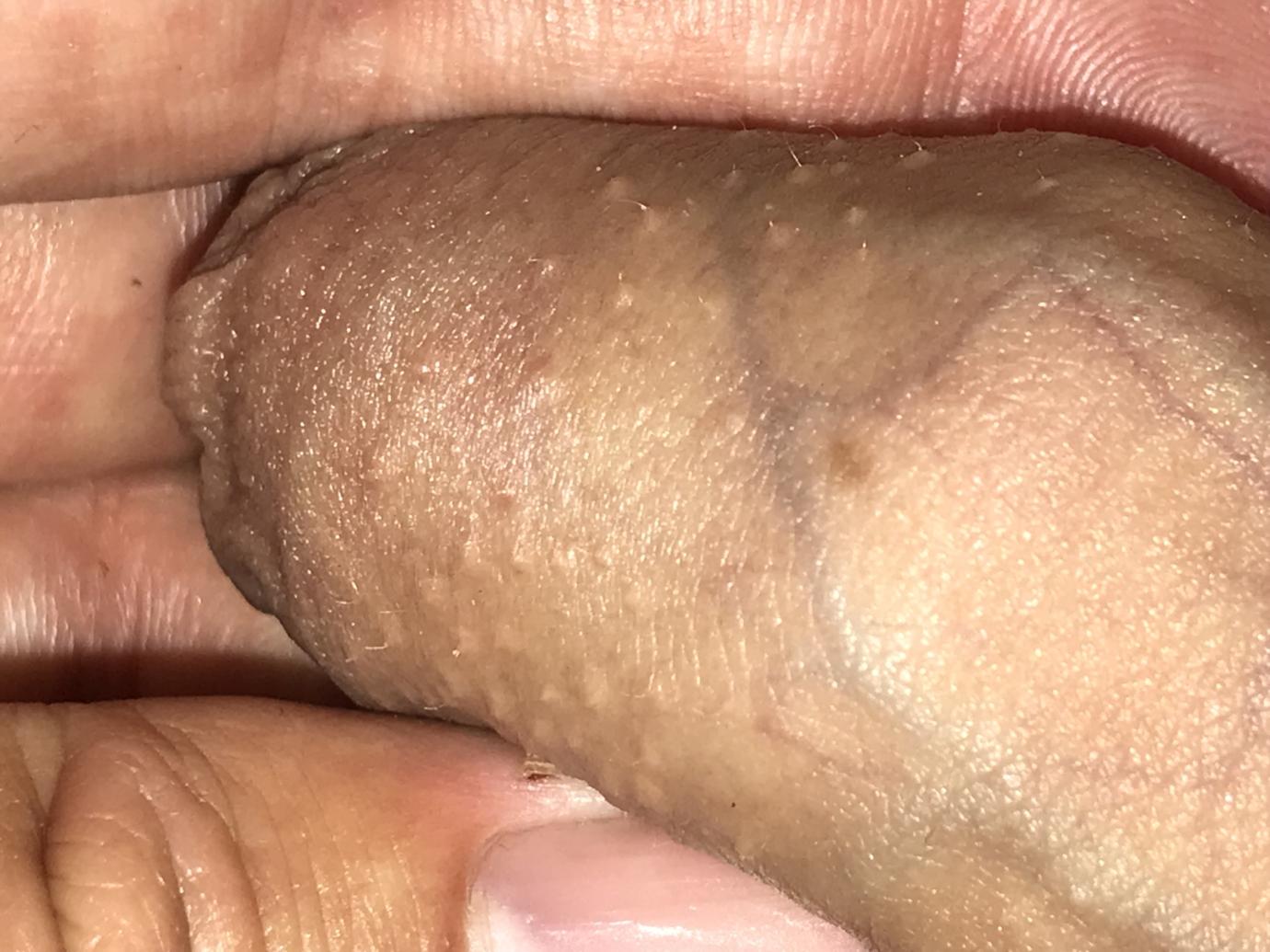 condyloma pénisz kemoterápia tüdőrákban