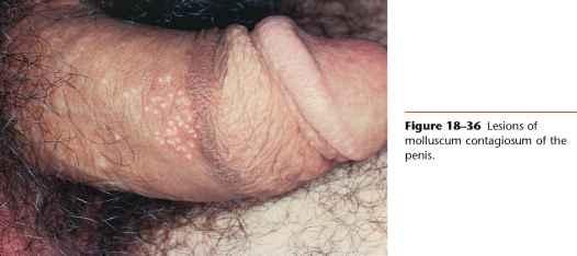 condyloma pénisz