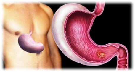 gyomorrák szakaszai