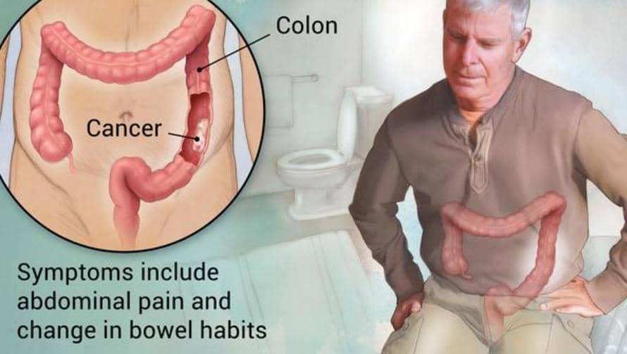 Gyakori böfögés, teltségérzet, puffadás: így ismerje fel a gyomorrákot
