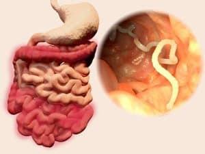 Helminták betegség jelei
