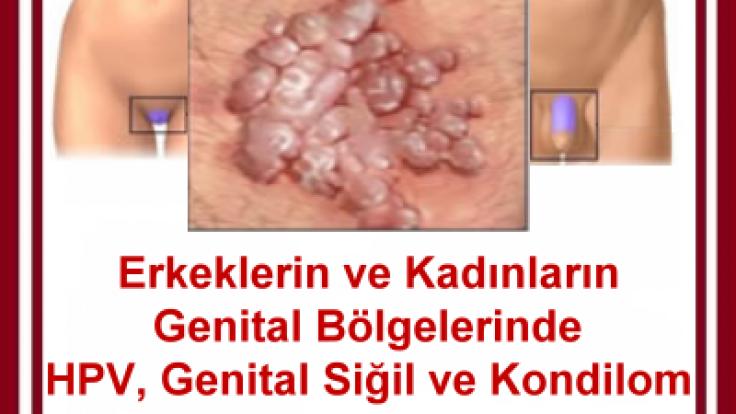 hpv tedavisi erkek krem