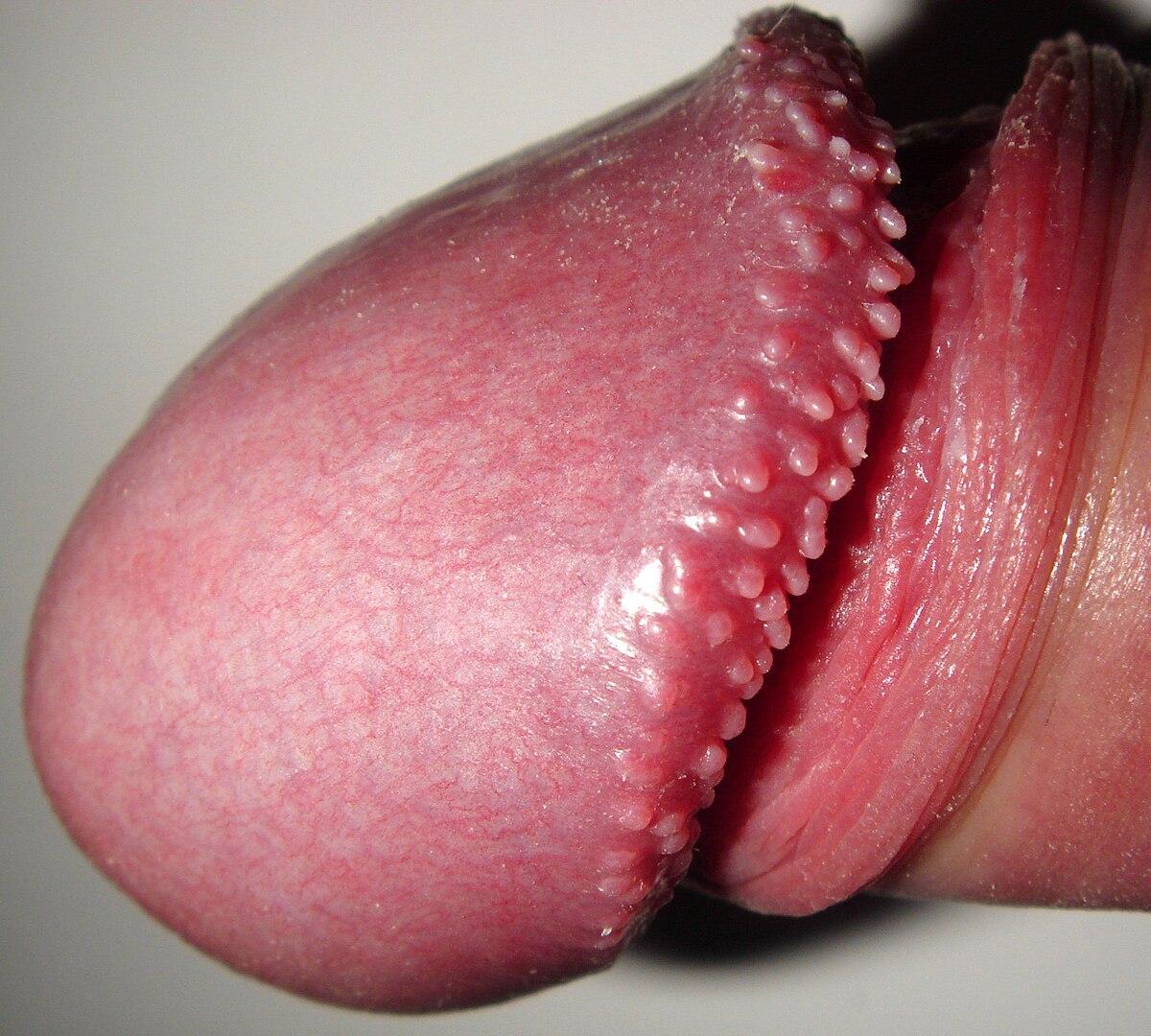 Prostatitis varicella zoster