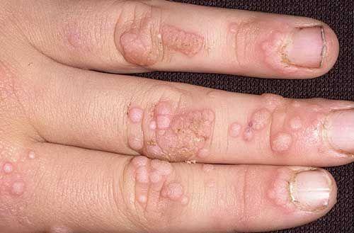 enterobiosis az óvodában orvosságok a nemi szemölcsökről vélemények