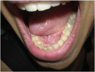 Nyelvcsap melletti kinövés - Fül-orr-gégészeti megbetegedések