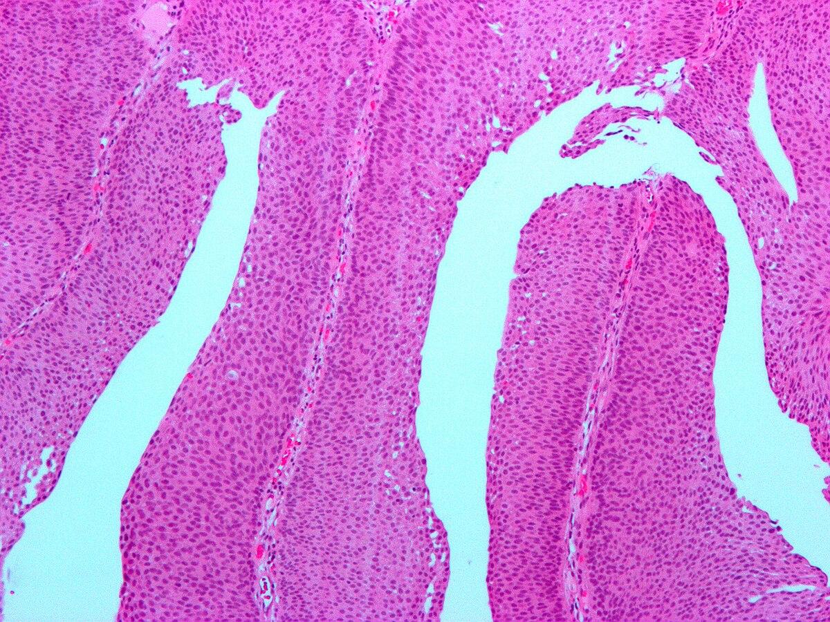 orr papilloma rák lábszemölcsök orvos vagy bőrgyógyász