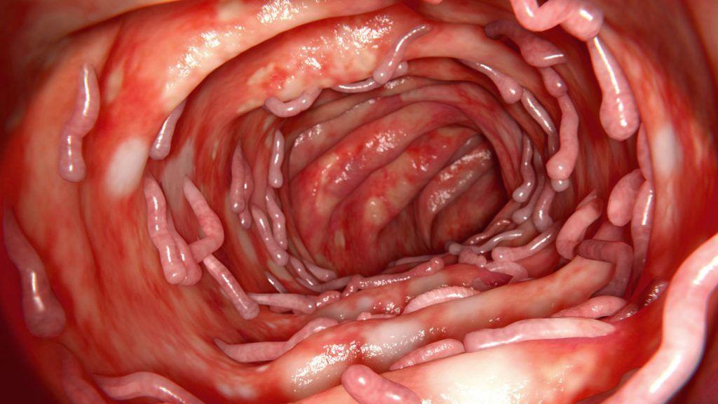 lipofil toxinok meghatározása condylom szaga