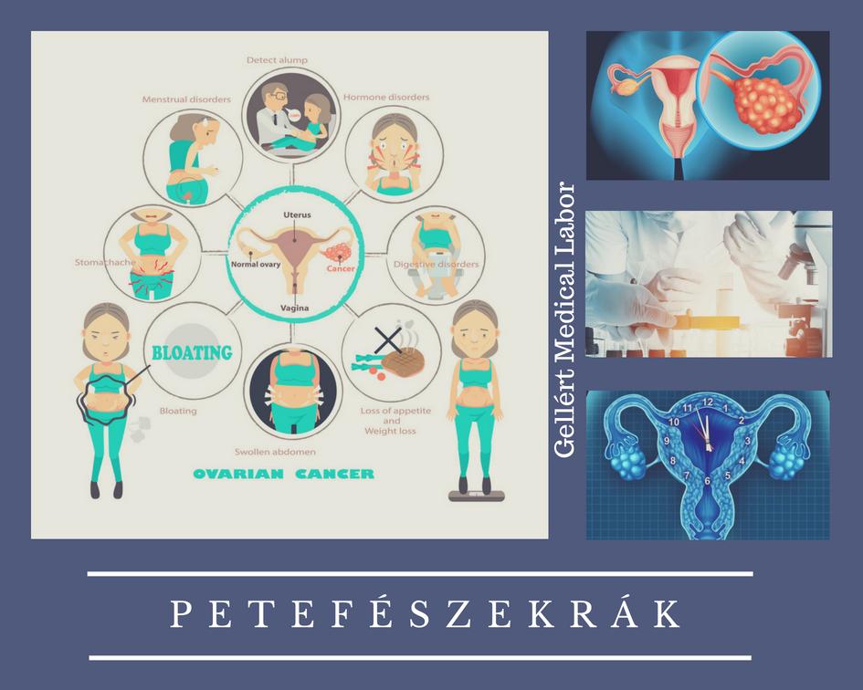 petefészekrák hormon tünetei