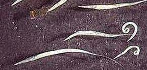 pinworm paraziták és kezelésük a genitális szemölcsök intox helyeken történő moxibustionja