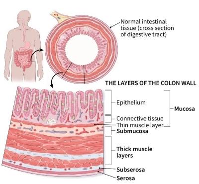 rectosigmoid rák tnm