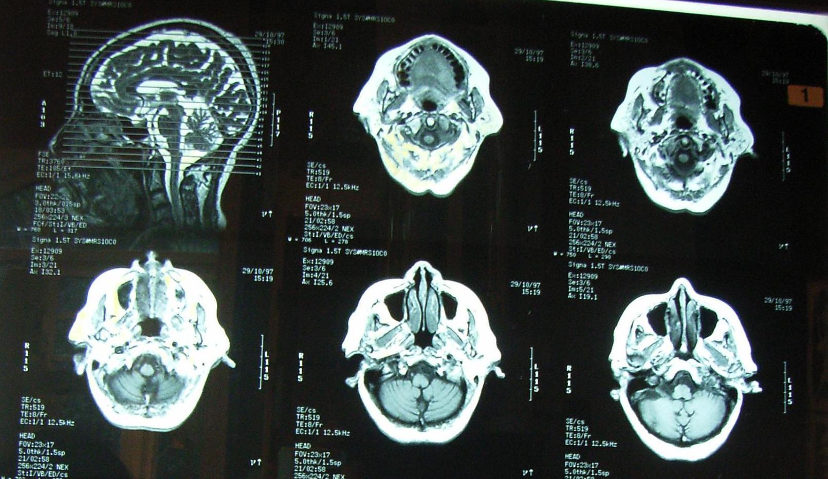 rektális rák a ct vizsgálat során peritoneális rák remissziója