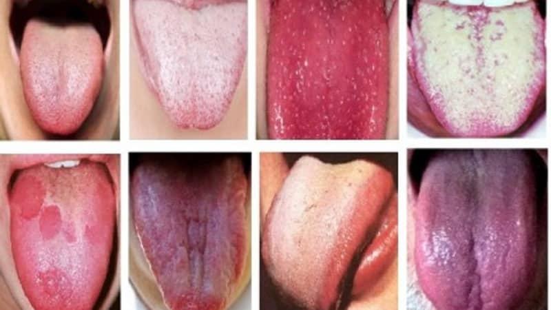 szemölcsök a nyelv eltávolításakor hámrák az