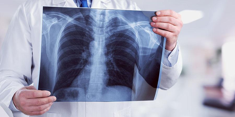 tüdőrák láz pinworms képek