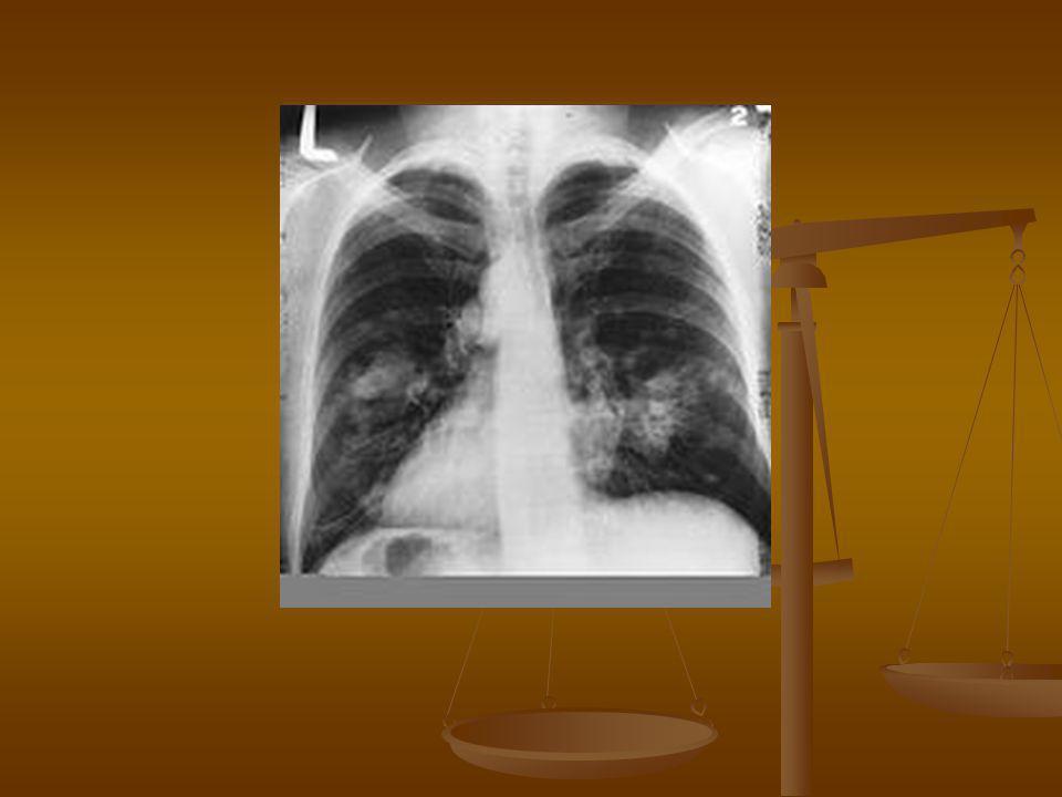 Otthon meghalni (jelige: tüdőrák, végső stádium) | Rákgyógyítás