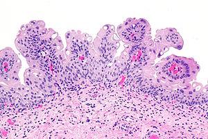 urothelialis papilloma hpv