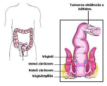 klinikai ajánlások a giardiasis kezelésére paraziták és csuklyák