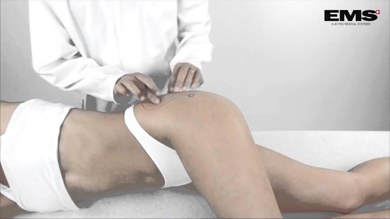A csípőízület kopása - Okok és tünetek - Ideges fájdalom a csípőízületben
