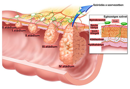 Daganatos betegségek - A vastagbélrák