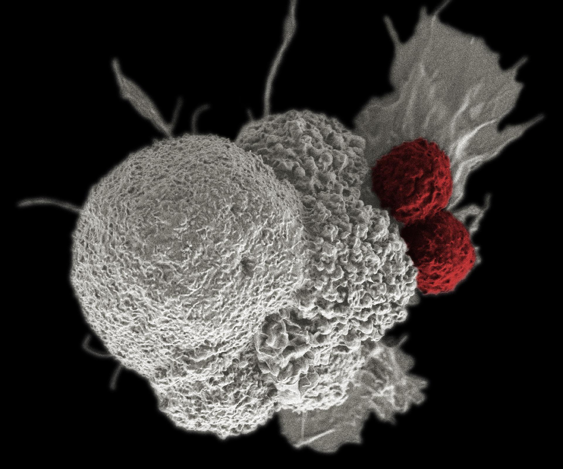A rák megelőzhető