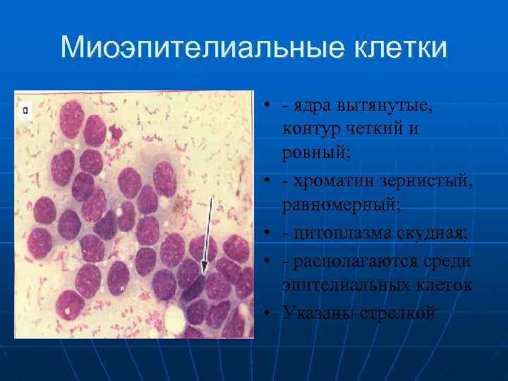intraductalis papilloma patológia körvonalai a gyomorrák gyógyul