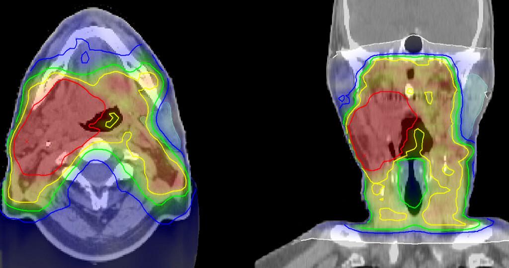 Papilloma stop krem. Cancer metastatic to liver