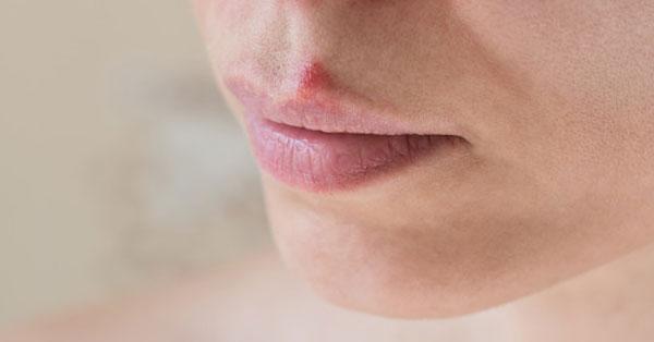 hogyan lehet gyógyítani a száj papillómáját a leghatékonyabb kenőcs a nemi szemölcsök ellen