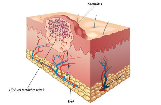 különbség a herpesz és a papilloma között