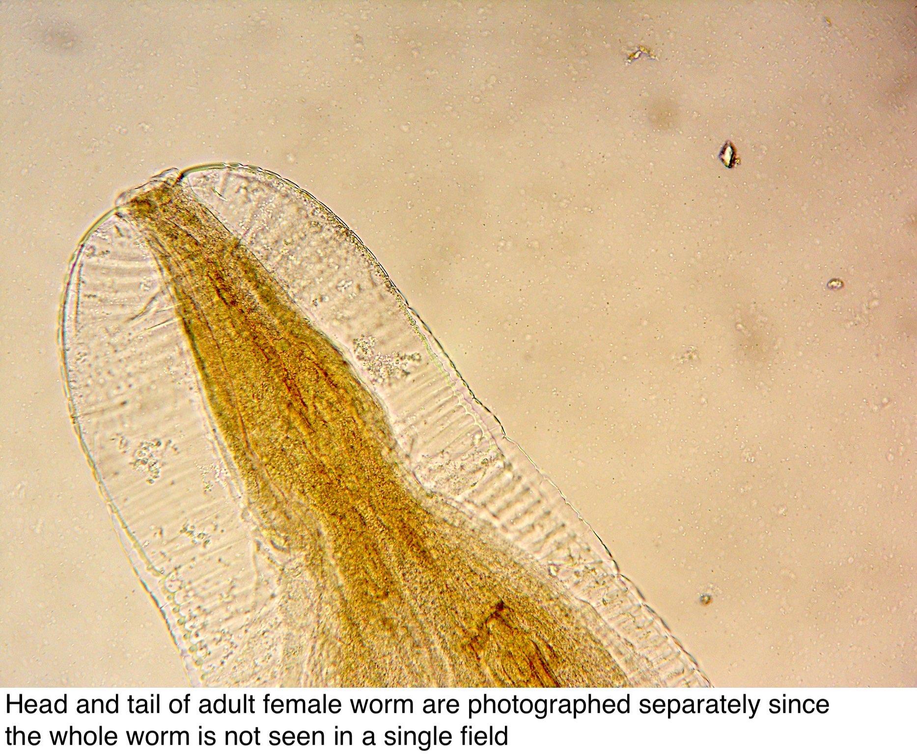 hím és nőstény enterobius vermicularis