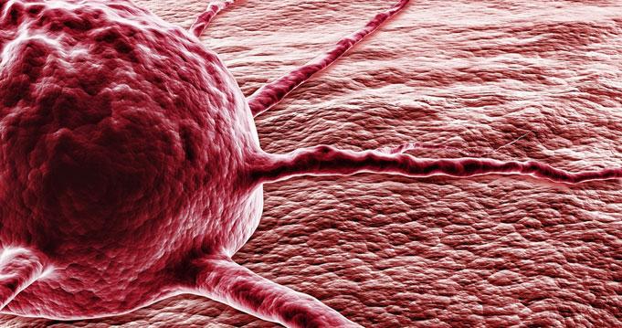 rák malignus szarkóma condyloma acuminatum emedicine