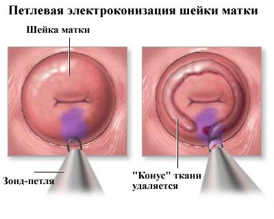 Jóindulatú bőrnövedékek eltávolítása A nemi szemölcsök eltávolítása a hüvely bejáratánál