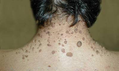 papillomavírus és szemölcsök