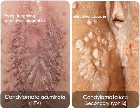 condyloma és papilloma