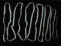 bélkezelés baktériumok és paraziták ellen