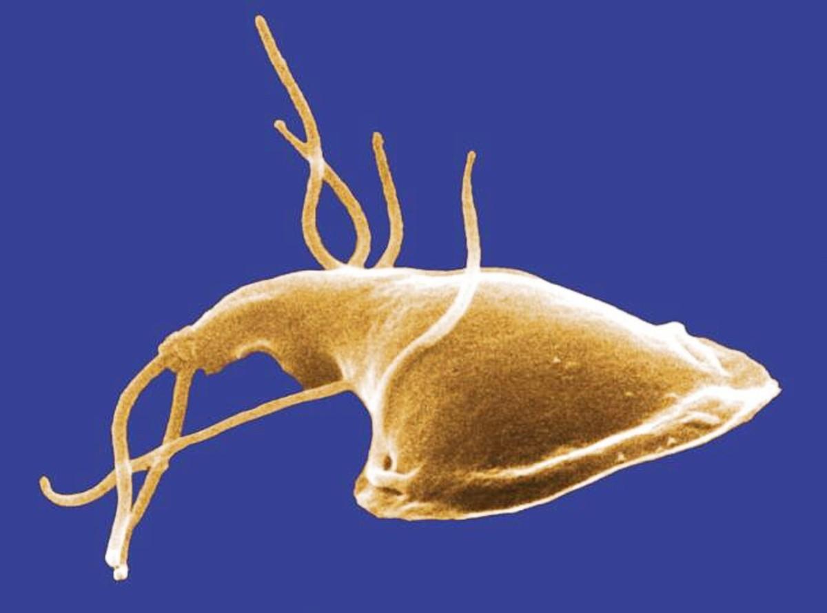 A giardiasis cisztikus formája