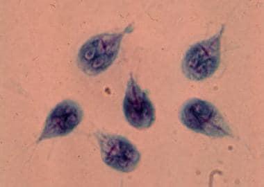 súlyos giardiasis)